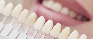 Facettes dentaires - esthétique dentaire Paris 19
